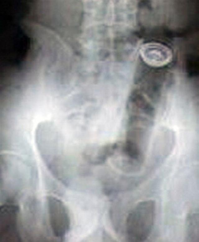 x-ray-16