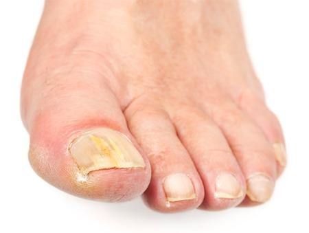 a98376_rsz_toenail-fungus