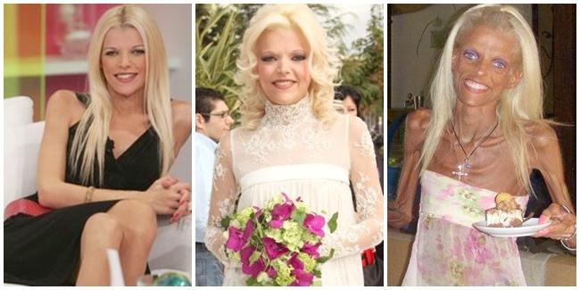 perubahan-miris-nana-karagianni-jurnalis-cantik-yang-terkena-anoreksia