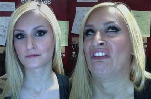 pretty-girl-ugly-face-teeth-620x