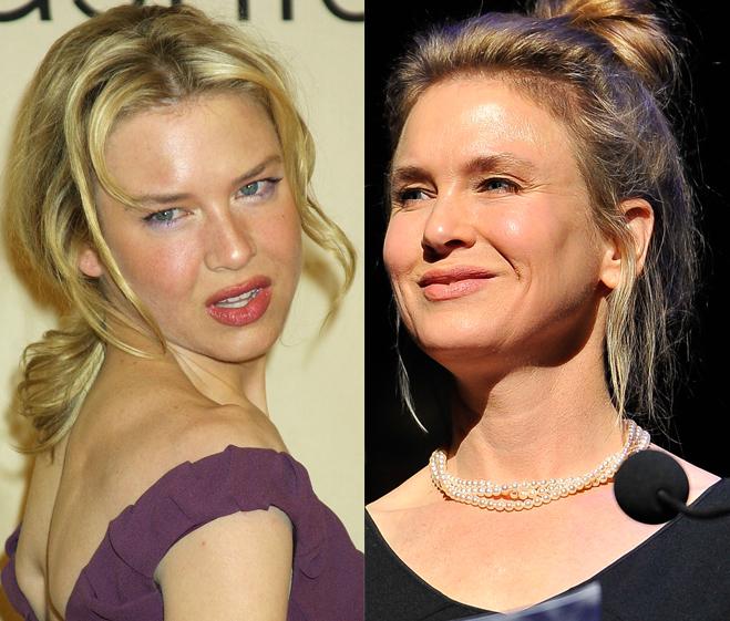 Renee-Zellweger-Plastic-Surgery-Photos-Before-After-1