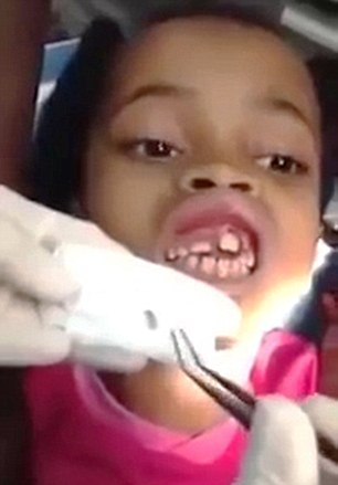 VID: 10-y/o Has 15 Maggots Removed From Mouth