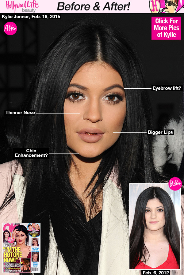 kylie-jenner-before-after-plastic-surgery-gty-lead2