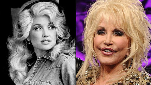celebrity_surgeries_that_didnt_end_well_640_09