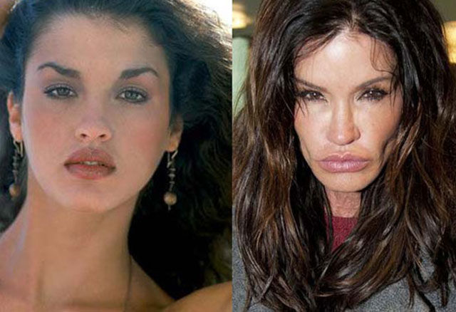 celebrity_surgeries_that_didnt_end_well_640_11