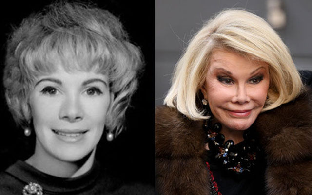celebrity_surgeries_that_didnt_end_well_640_13