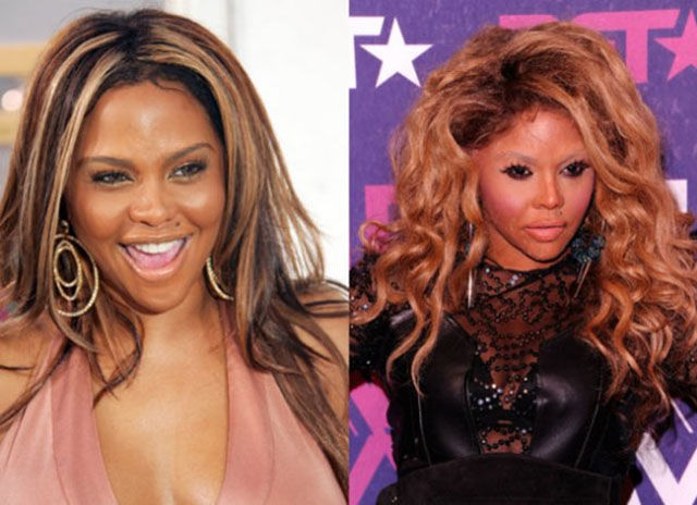 celebrity_surgeries_that_didnt_end_well_640_14