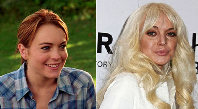 celebrity_surgeries_that_didnt_end_well_640_15