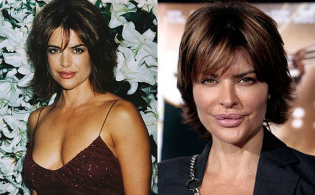 celebrity_surgeries_that_didnt_end_well_640_16