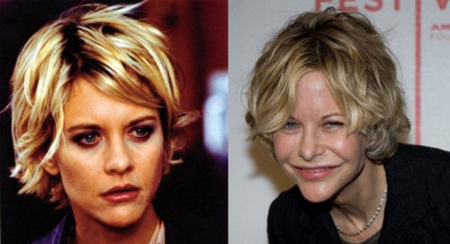 celebrity_surgeries_that_didnt_end_well_640_17