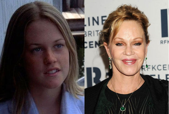 celebrity_surgeries_that_didnt_end_well_640_18