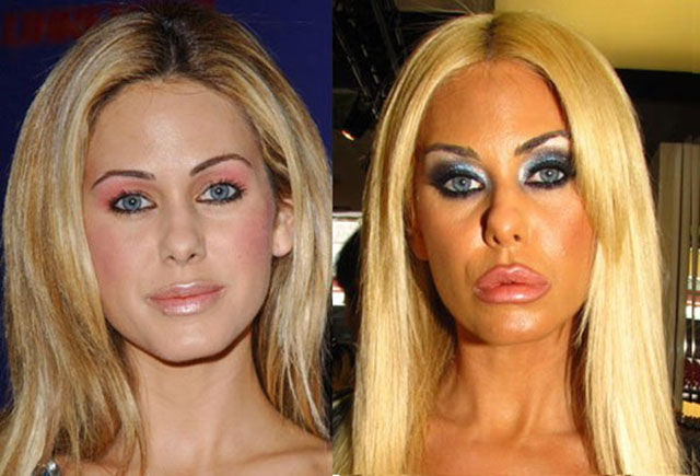 celebrity_surgeries_that_didnt_end_well_640_22