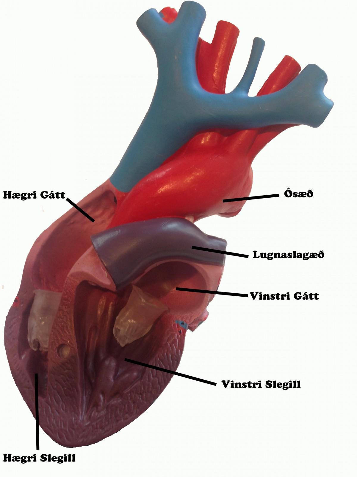 HEARTComplett