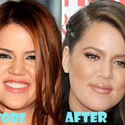 khloe-kardashian-before-and-after-6