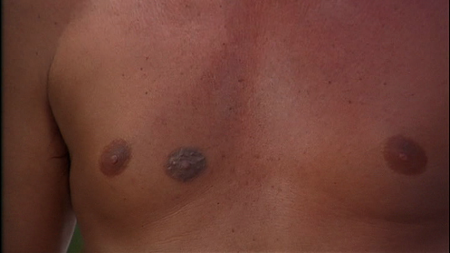 third-nipple