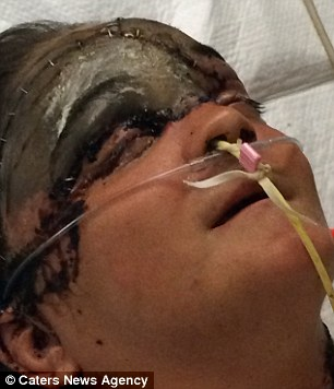 354CB63A00000578-3642635-Stephanie_Adkins_pictured_is_in_hospital_in_Columbus_Ohio-a-19_1465989485255