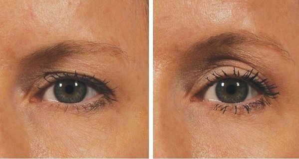 Want-an-Eye-Lift-Without-Surgery-You'll-Need-2-Minutes-Only-Here-is-how