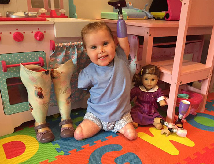 2-year-old-girl-got-legs-arms-amputated-gets-doll-look-just-like-her-1