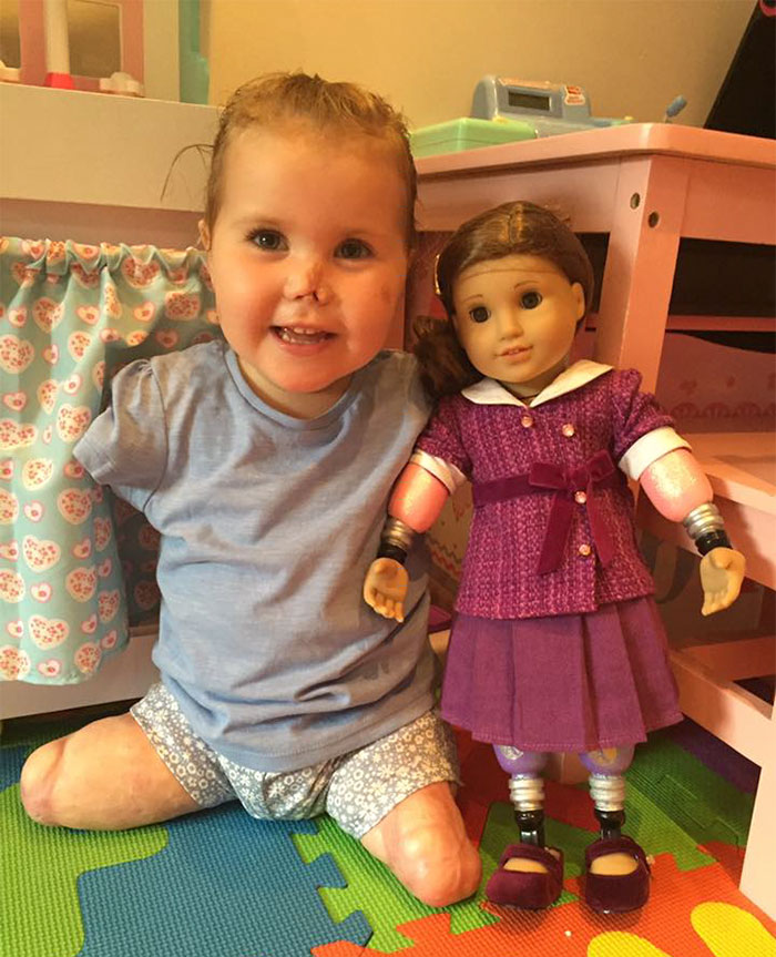 2-year-old-girl-got-legs-arms-amputated-gets-doll-look-just-like-her-2