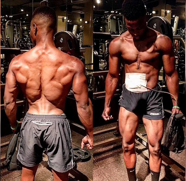 inspiring-fitness-model-that-lives-without-a-working-heart-3