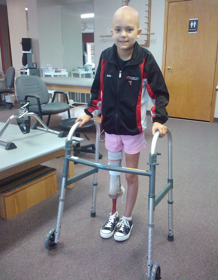 take-a-look-at-the-amazing-recovery-of-the-15-year-old-amputee-ballerina-who-lost-her-leg-to-cancer-1