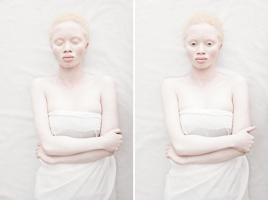 beautiful-albino-people-albinism-103-582f0093cbc45__880