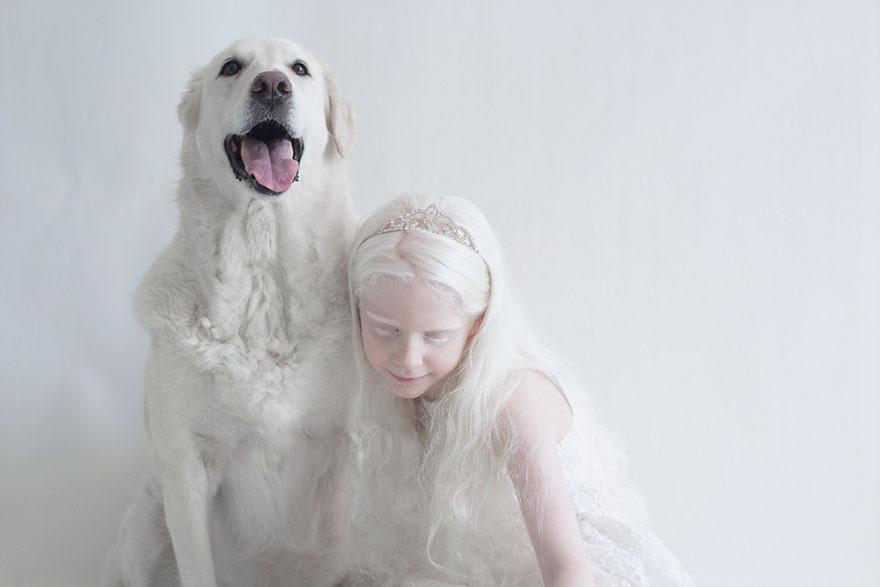 beautiful-albino-people-albinism-16-582ebf0fb73c7__880