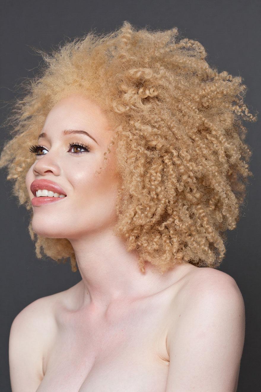 beautiful-albino-people-albinism-28-582ed6222ccf8__880