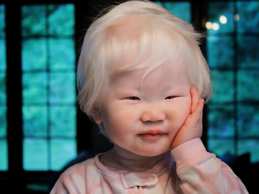 beautiful-albino-people-albinism-37-582efaa64409b__880