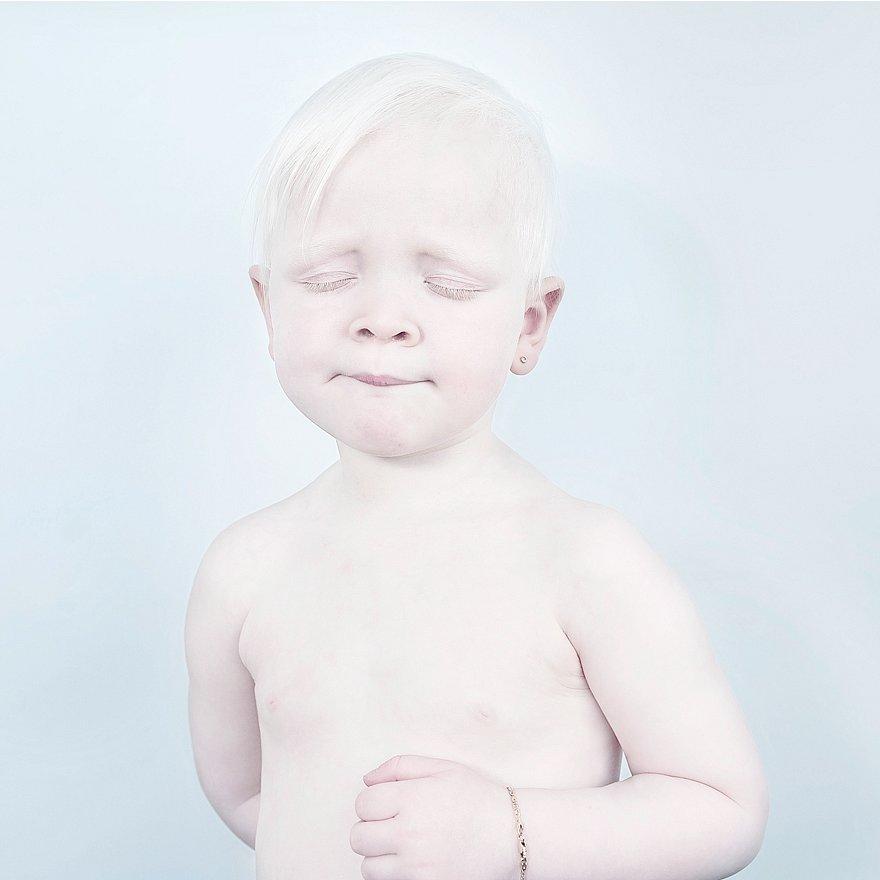 beautiful-albino-people-albinism-44-582f0461c53f7__880