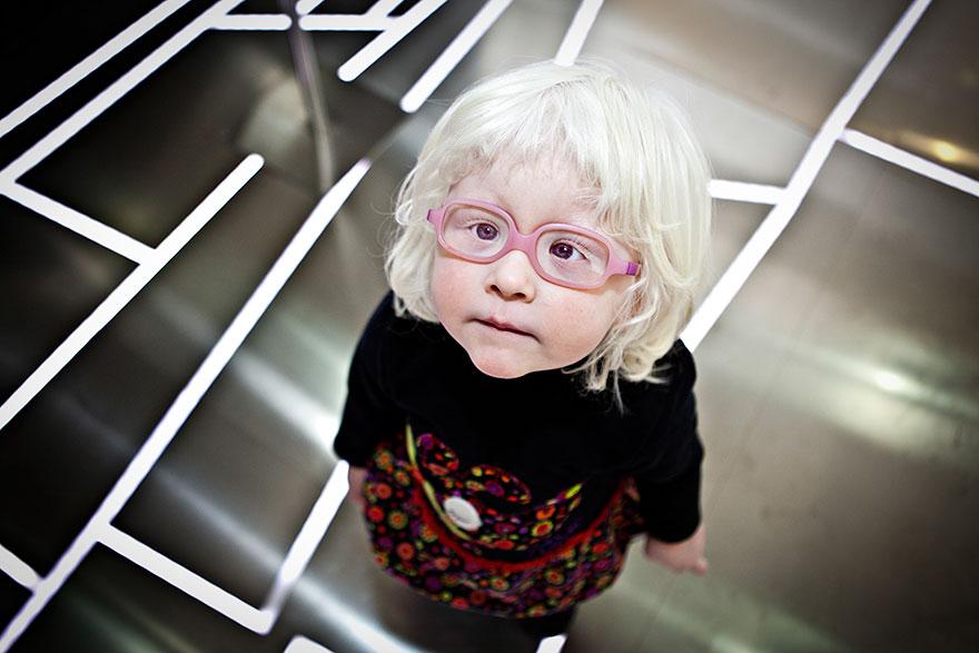 beautiful-albino-people-albinism-56-582f064116962__880