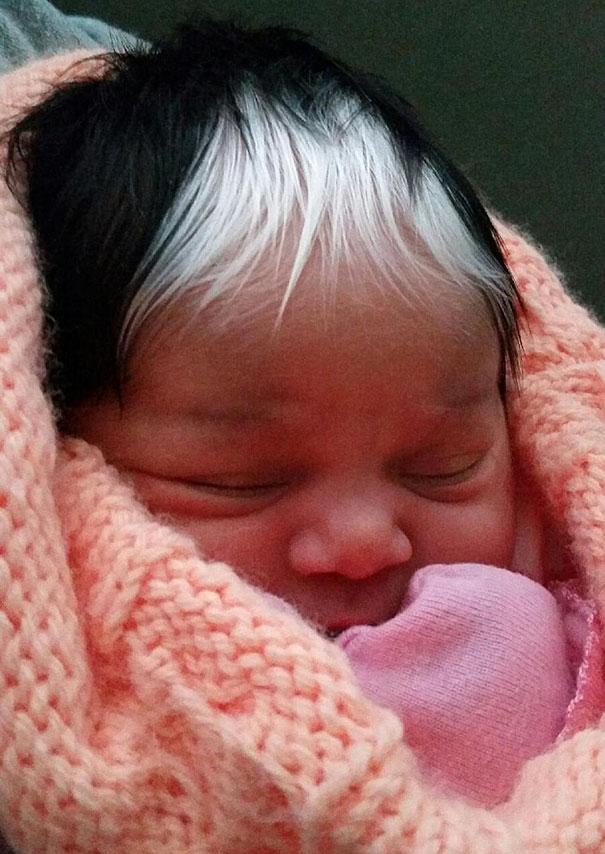 white-streak-hair-poliosis-baby-girl-13