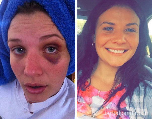 before-after-drug-addiction-25-585be957ee970__605