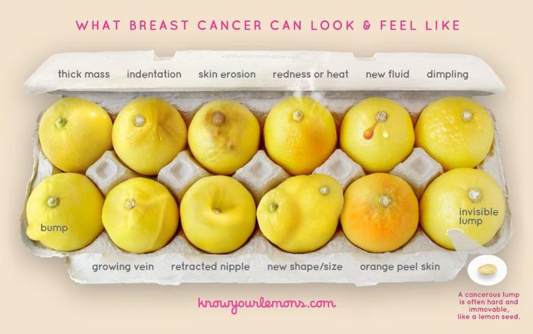3563eddfb5bd7e2c-signs-of-breast-cancer-1484425012
