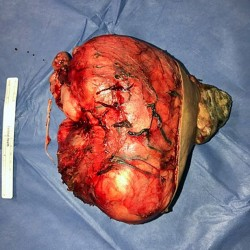 PAY-GIANT-TUMOUR-REMOVED-FROM-KID (4)