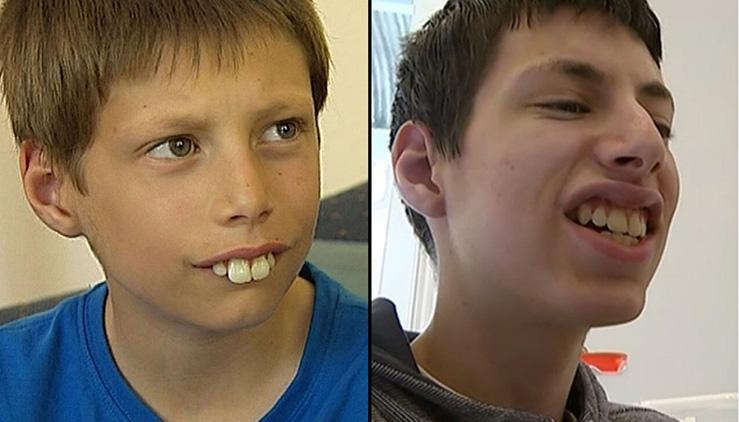 73wzu-teeth1